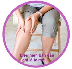 suy giãn tĩnh mạch chân
